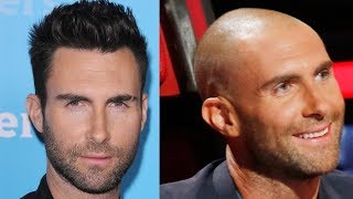 Video ✅Celebrity Hair Transplant Transformations! Why shaved head doesn´t suit everybody! MP3, 3GP, MP4, WEBM, AVI, FLV Juli 2018