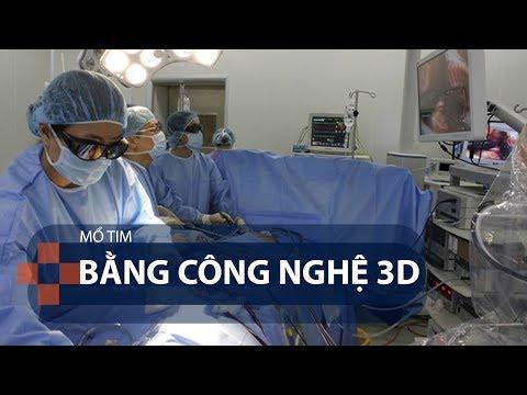 Mổ tim bằng công nghệ 3D | VTC1 - Thời lượng: 93 giây.