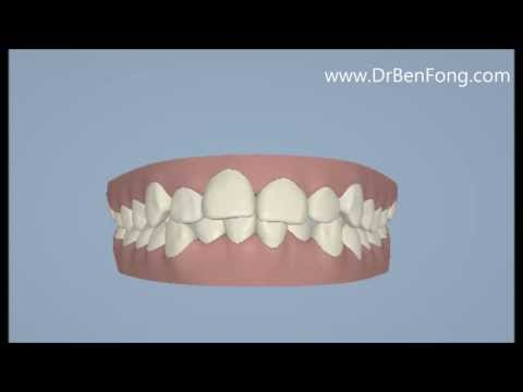 Invisalign Results for Florent M.| Before & After | www.invisalignresults.ca