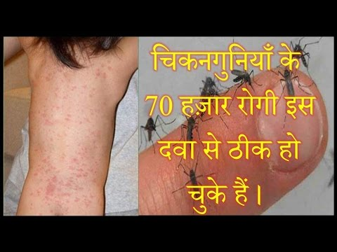 Chikungunya Best Ayurvedic And Homeopathy Treatment By Rajiv Dixit
