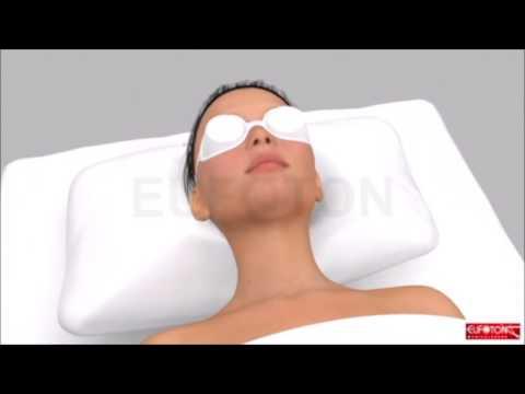 ¿Cómo funciona ATON? Láser fraccional para rejuvenecimiento de la piel