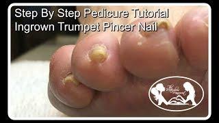 Video 👣Step by Step Pedicure Tutorial Ingrown Trumpet Pincer Toenail 👣✔️ MP3, 3GP, MP4, WEBM, AVI, FLV Juli 2018
