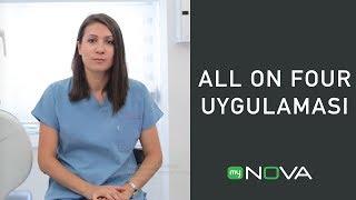 Nova TV - All on four uygulaması nedir, nasıl yapılır ? (Tek Bölüm)