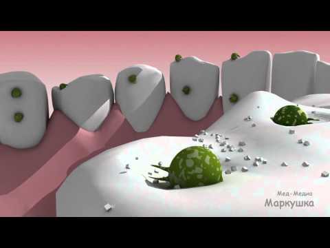 Мультфильм от детской стоматологии \