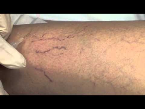 sclerotherapy penis