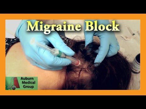 Migraine Cure Nerve Block | Auburn Medical Group