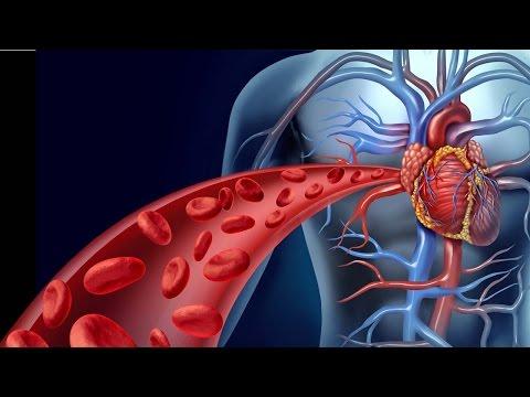 مرض القلب التاجيّ