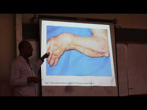Rheumatoid Arthritis. By Dr. Dheyaa Jabbar