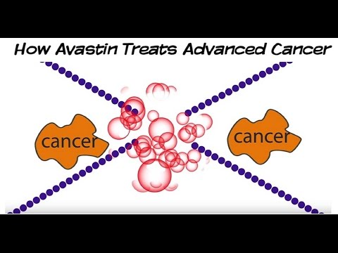 How Avastin (Bevacizumab) Targeted Therapy Treats Advanced Cancer