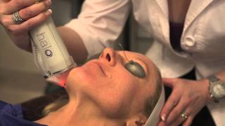 The Halo Hybrid Fractional Laser in Action