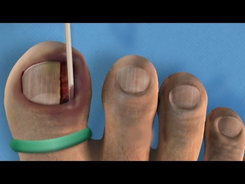 Ingrown Toenail Removal Surgery