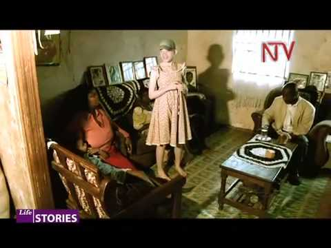 NTV Lifestories - Albinism pt 1