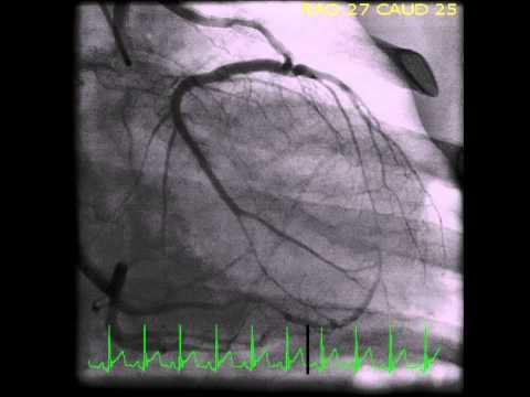 Anomalous left main coronary artery originating from right coronary cusp