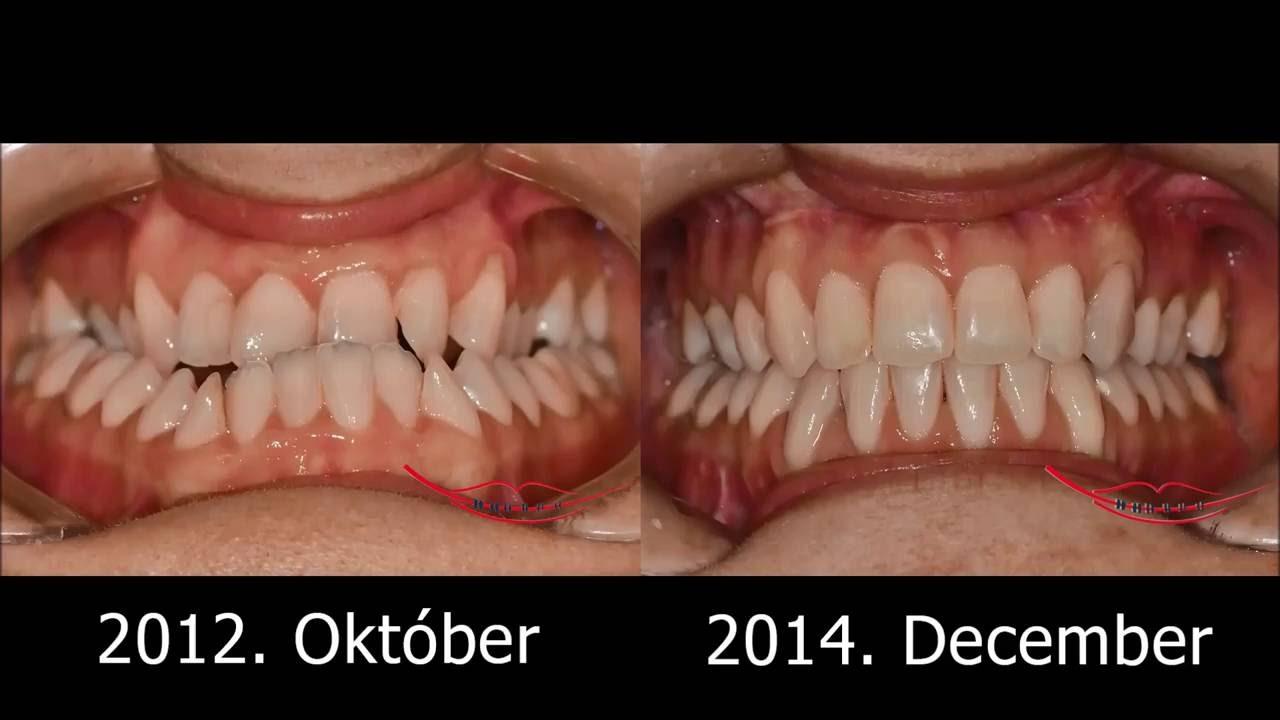 Súlyos bulldogharapás sebészi-fogszabályozó kezelése