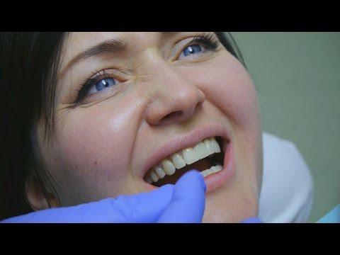 Как снимают коронку зуба? Проект с блогером