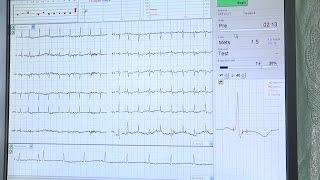 وصول أجهزة طبية متطورة للمختبرات وتخصص القلب في جمعية أصدقاء المريض بطولكرم