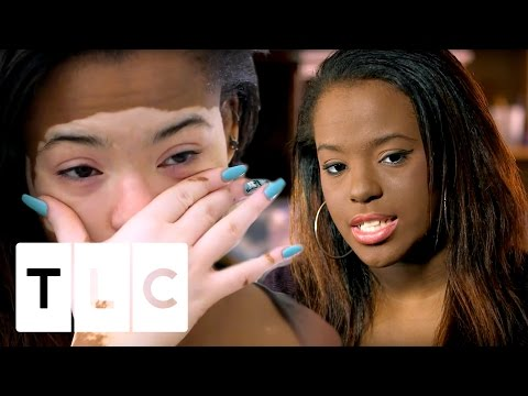 這位19歲少女因為罹患白斑症每天都畫「厚厚泥底妝」才敢出門,但當她決心卸妝後…真面目讓網友驚呼美呆了!