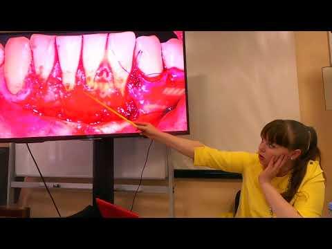 Хирургическое лечение рецессий десны в области зубов и имплантатов. Часть 16