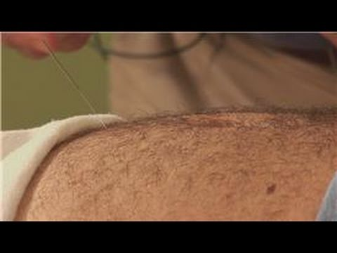 Acupuncture Treatments : Acupuncture For Erectile Dysfunction