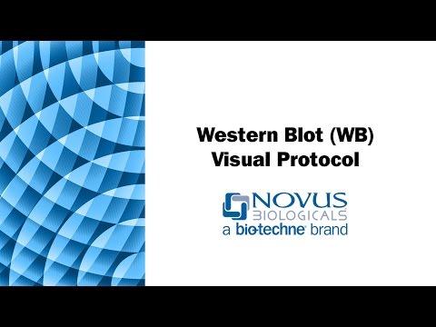 Western Blot (WB) Visual Protocol