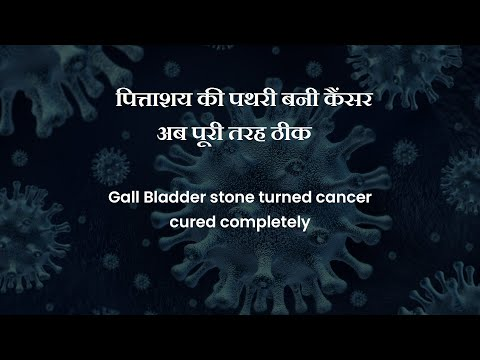 Cancer Healer Center successfully treats Gall Bladder Cancer