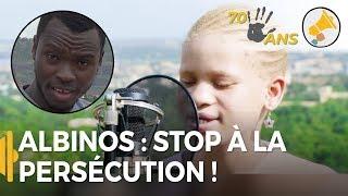 Video LES JEUNES ALBINOS DÉNONCENT LA PERSÉCUTION / Mamadou au Mali MP3, 3GP, MP4, WEBM, AVI, FLV Desember 2018