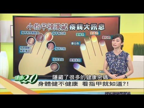 指甲隱藏疾病大訊息!看指甲就知道?