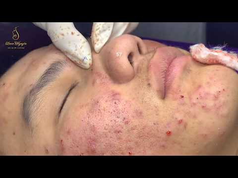 PROFESSIONAL ACNE TREATMENT_ Tratamiento profesional para el acné (57) | Loan Nguyen