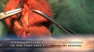 Intramedullary pin and wire fixation of the tibia part 3