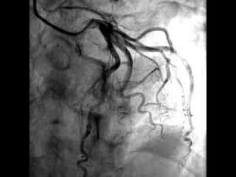 Myocardial Bridging