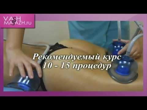Вакуумно роликовый массаж на аппарате Старвак