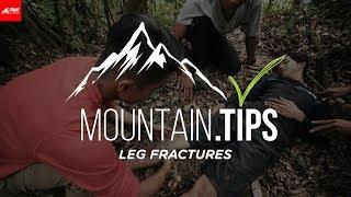 Video Mountain Tips 3 - Pertolongan Pertama pada Patah Tulang  (Leg Fractures) MP3, 3GP, MP4, WEBM, AVI, FLV April 2019