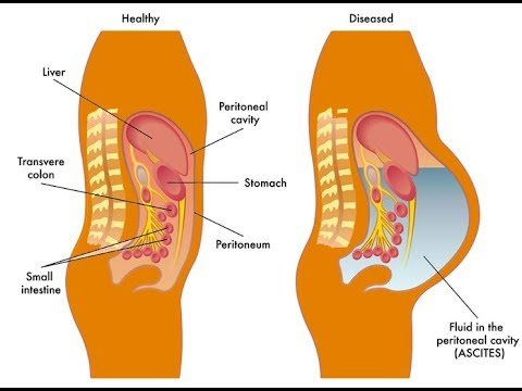 Fluid accumulates in your abdomen Signs|symptoms an type|natural treatment of Ascites