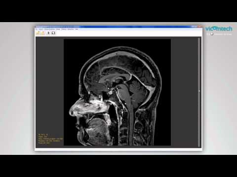 Initial prototype of neurosurgical planning tool for epilepsy
