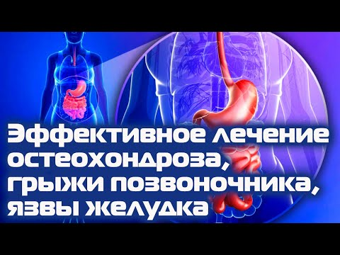 Остеохондроз, межпозвонковая грыжа, язва желудка - эффективное безлекарственное лечение
