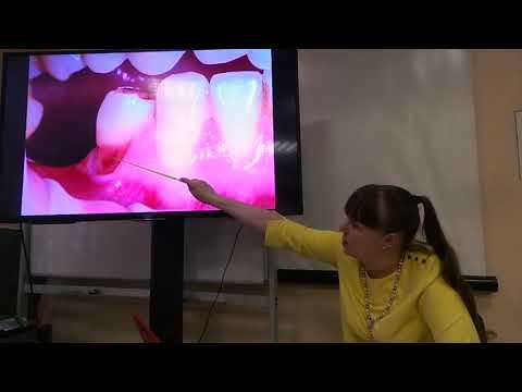Хирургическое лечение рецессий десны в области зубов и имплантатов. Часть 8