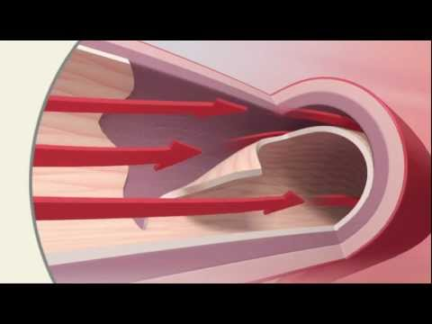 SCAD Spontaneous Coronary Artery Dissection – Mayo Clinic