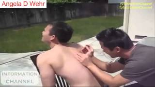 Nonton Treatment Video Compilation 2016   Wart Mole Skin Tag Removal Vol 7 1 Film Subtitle Indonesia Streaming Movie Download