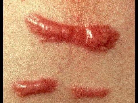 DermTV - How to Treat a Keloid Scar [DermTV.com Epi #279]