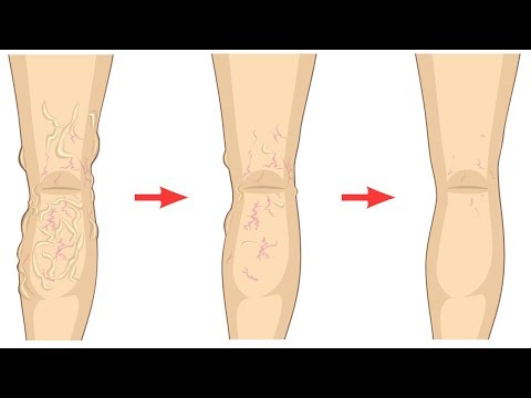 How to Get Rid of Varicose Veins Naturally