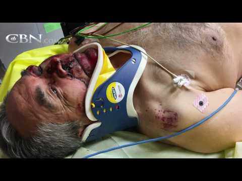 """Motorcycle Accident Victim: """"I Knew I Was Dead"""" – cbn.com"""