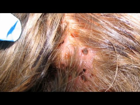 Mysterious Lesions on Girl's Head Turn Out to be Flesh-Feasting Parasite