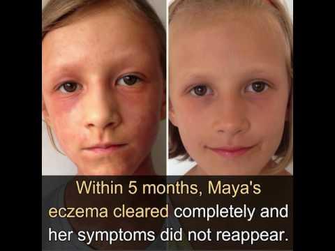 maya, la bambina con severo eczema incurabile guarita con il crudismo