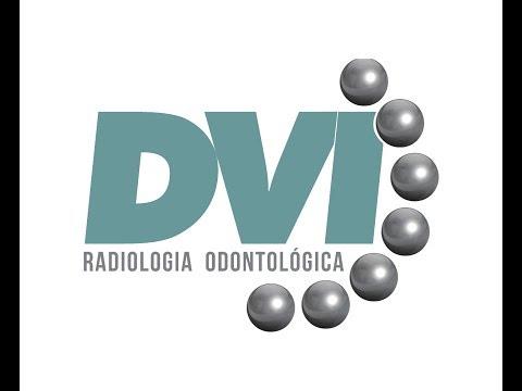 Primeira cirurgia guiada de implantes realizada em Ribeirão Preto