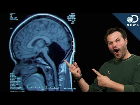 You) - A 24-year-old woman recently saw a doctor because she was suffering from dizziness and nausea. It turns out, she doesn't have a cerebellum! Trace is here to discuss why this case is leaving...