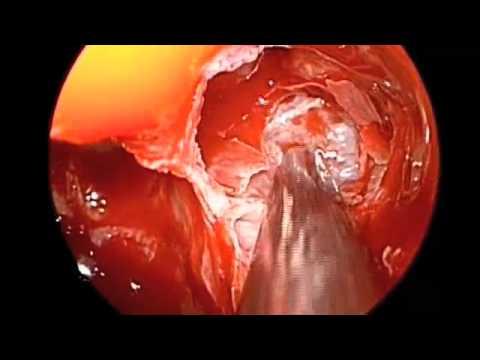 steroid eluting stent