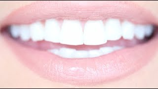 How to Get Really White Teeth For Cheap | Kandee Johnson