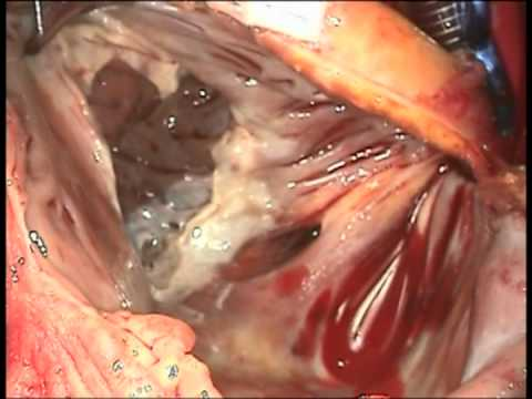 Tricuspid Valve Replacement for Endocarditis