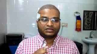 Panipat India  city pictures gallery : FUE transplant technique - Highest density. Panipat, India. +91-9416500112
