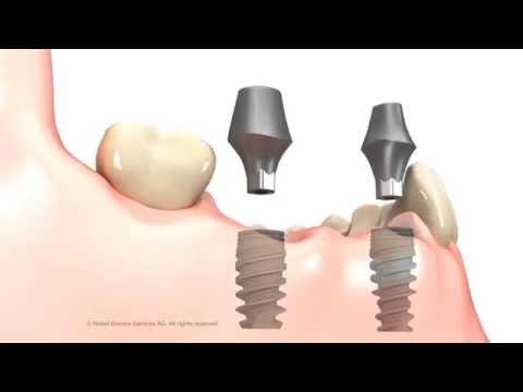 Prótesis fija parcial sobre 2 implantes dentales